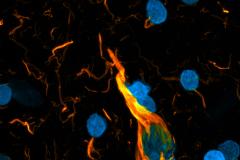 Neuron on fire