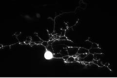 DRG Neuron