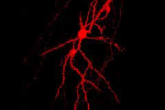 Spiny Stellate Neuron
