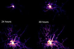 Motor neuron time lapse