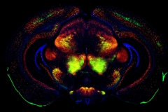Coronal Brain Section Mouse