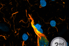 Neuron on Fire