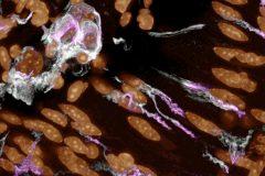 Enteric neurons