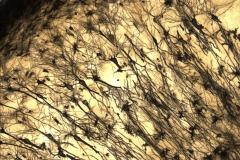 Golgi stained hippocampus