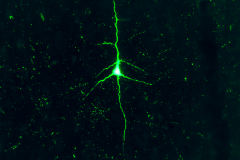 Neuron in green