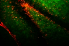 Hippocampal Progenitor cells