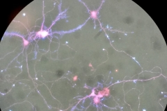 Neurons are your inner galaxy