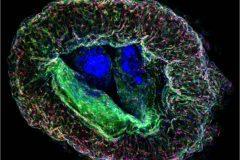 Cortical Neuro-Prerrogative
