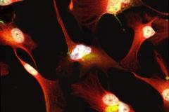 Glioma cells