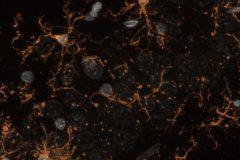 Microglial cells at rat hippocampus